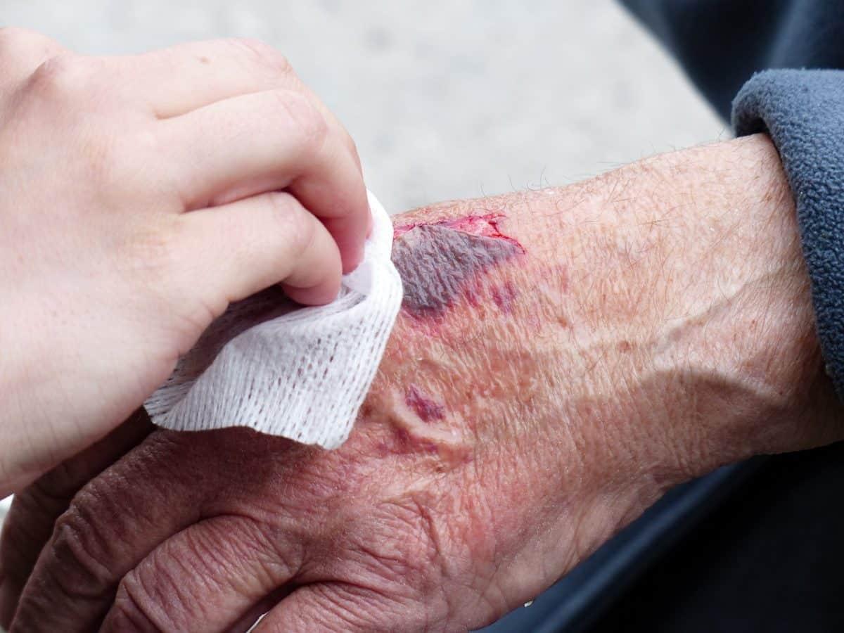 Comment soigner des blessures avec de l'alcool à friction?