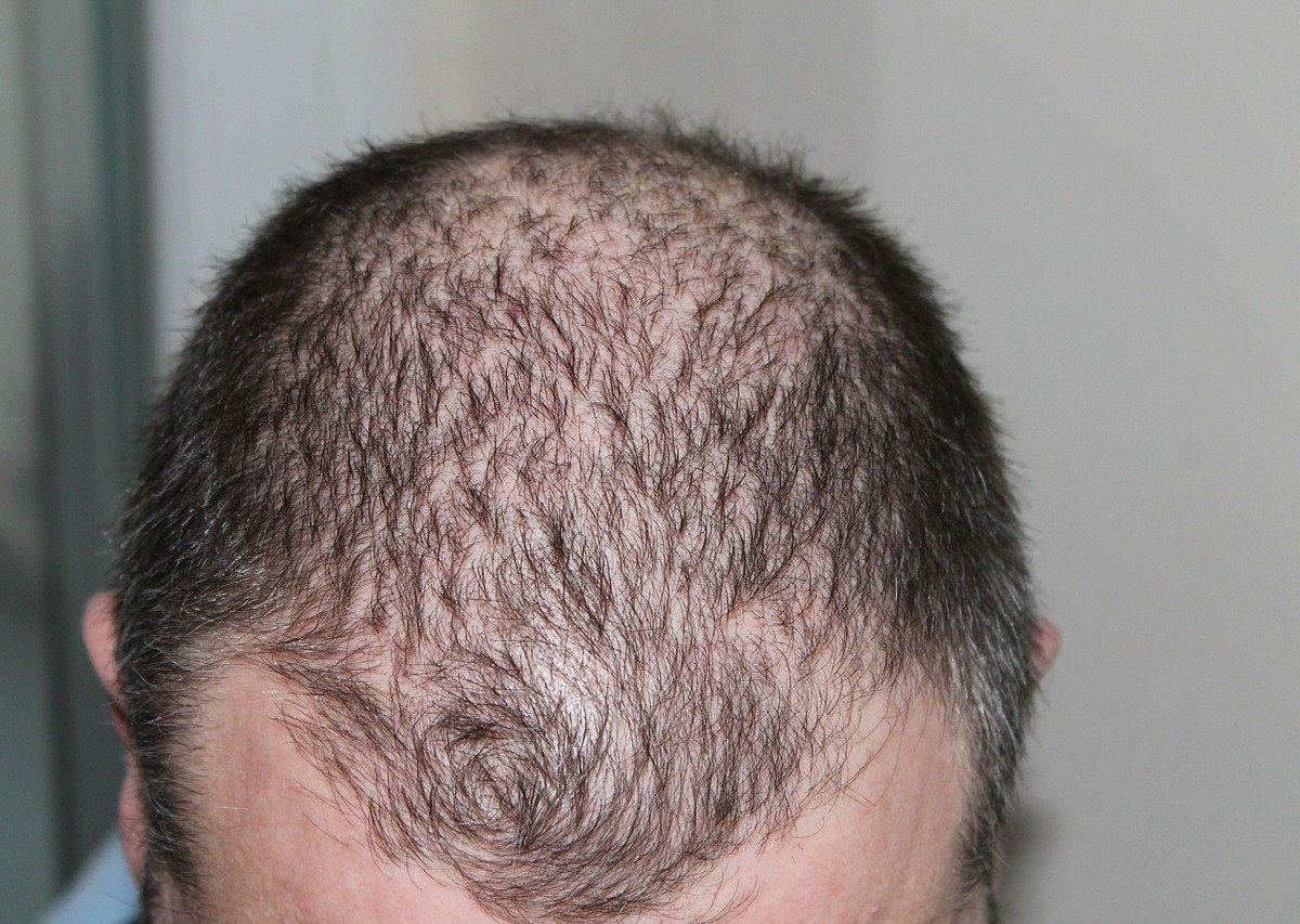 Greffe de cheveux: qu'est-ce que la technique FUE?