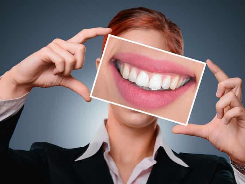 Dents tachées : kit de blanchiment dentaire pour retrouver le sourire